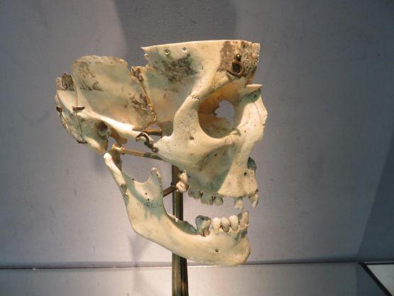 Разборной  череп человека, XX в.